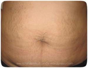 stretch mark for blog