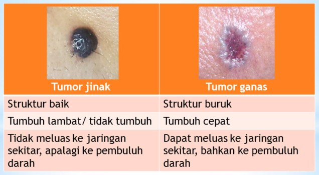 slide tumor 1